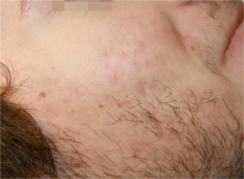 Akne Behandlung nachher