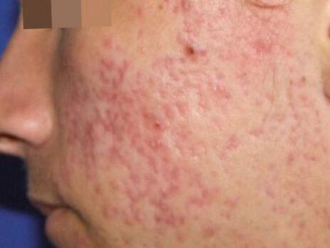 Akne Behandlung vorher